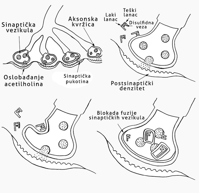 Dejstvo botulinum toksina - botoksa